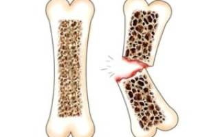 Лечение остеопороза у женщин в менопаузе