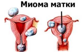 Субмукозная миома матки в период менопаузы