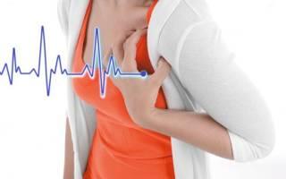 Причины аритмии сердца у женщин при климаксе