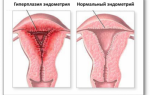 Лечение вобэнзимом гиперплазии эндометрия при климаксе