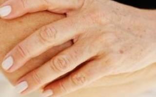 Пигментные пятна на лице при климаксе
