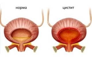 Синдром раздраженного мочевого пузыря при климаксе