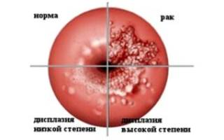 Признаки рака матки на ранних стадиях в менопаузе