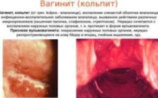 Воспаление во влагалище при менопаузе и ее лечение