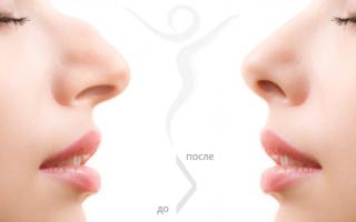 Как исправляют носовую перегородку?