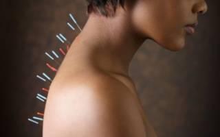 Помогает ли иглоукалывание при климаксе