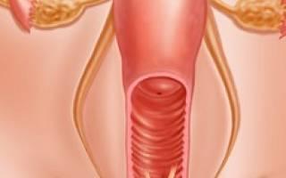 Лейкоплакия шейки матки в менопаузе лечение
