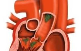 Пролапс митрального клапана при климаксе