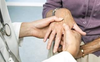 Почему болят колени при климаксе