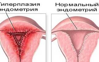 Народные средства для лечения гиперплазии эндометрии при климаксе