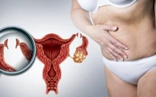 Усыхает ли миома после менопаузы