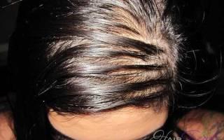 Повышенная жирность волос при менопаузе