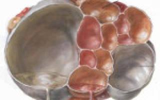 Серозная цистаденома левого яичника в менопаузе